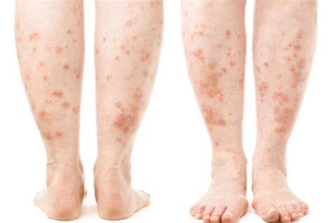 psoriasis light therapy near me leg rash symptoms causes treatments healthgrades com
