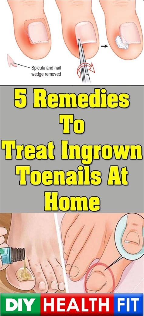 the 25 best ingrown toenail treatment ideas on