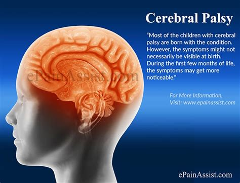can baby swings cause brain damage cerebral palsy symptoms types causes treatment prevention
