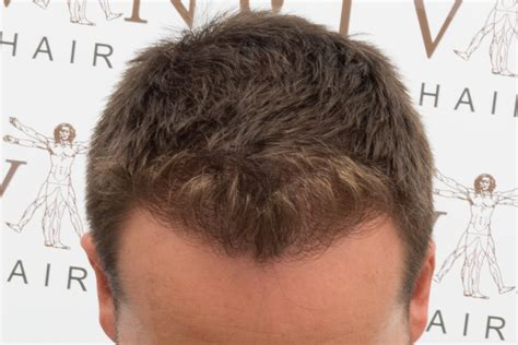 hair transplant in australia what are the factors that hair transplant or scalp micropigmentation which is best