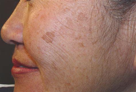 tratamientos tratamientos para las manchas todo sobre las manchas en la cara causas tipos y