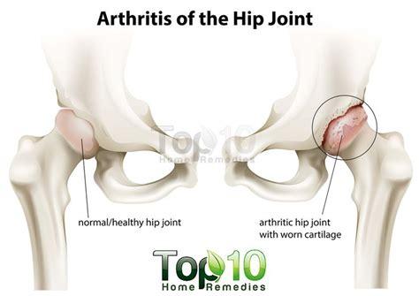 arthritis symptoms 13 best images about apple cider vinegar benefits on