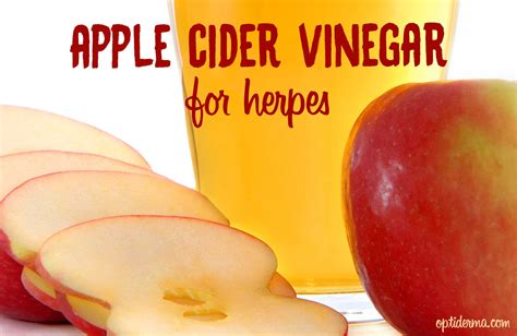 Can Blisters In Be From Detox by How To Use Apple Cider Vinegar For Herpes And How Acv Can