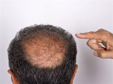 bald spot on the bald spots that are linked to cancer easy health options 174