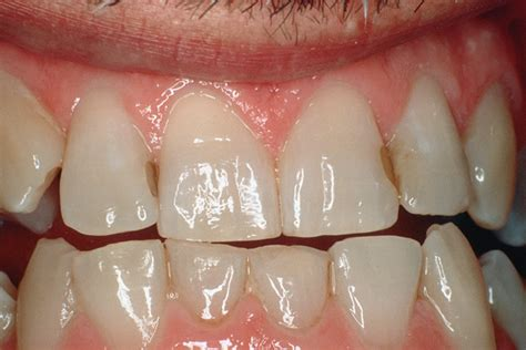 selected  clinical cases valeria  gordan dds