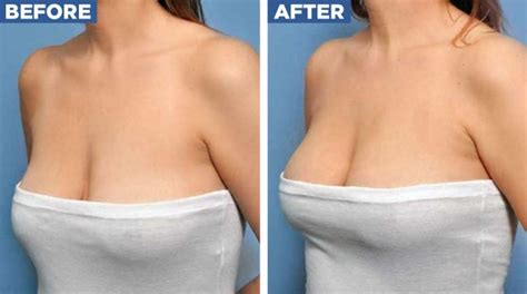 Breast Lift breast implant after pregnancy maxolon breast