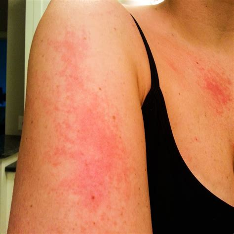 rash on inner arm the maren update july update
