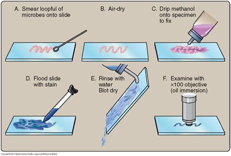 gram staining procedure in flowchart simple staining procedure search microbiology