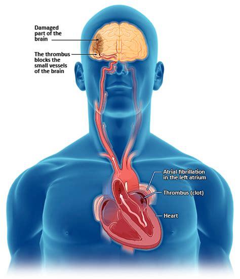 watchbp co uk atrial fibrillation
