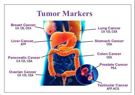 pattern analysis of tumor markers 914 best health medical images on pinterest