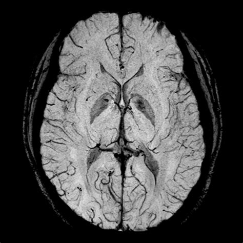 3 tesla mri magnetic resonance imaging country