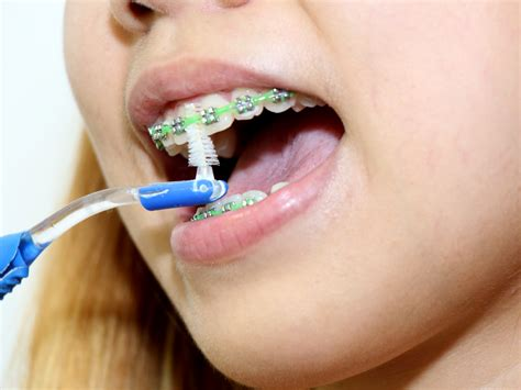 with braces how to floss with braces 11 steps with pictures wikihow