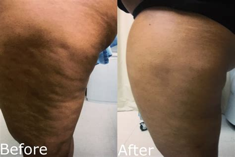 cellulite treatment cellulaze laser procedure hartford ct