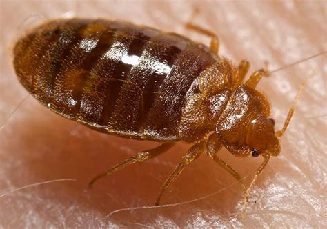 Image Bed Bug by Monkeypox Scare Is An Important Bed Bug Reminder For
