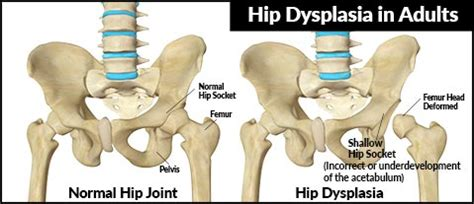 image gallery hip dysplasia treatment