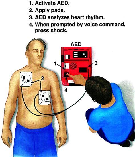 Harga Pacemaker jual defibrillator murah toko jual defibrillator murah