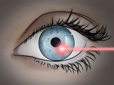 floaters in eye with flashes of light 3 ways to get rid of eye floaters wikihow