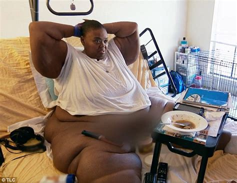 bed written obese 800lbs mom who underwent gastric surgery still