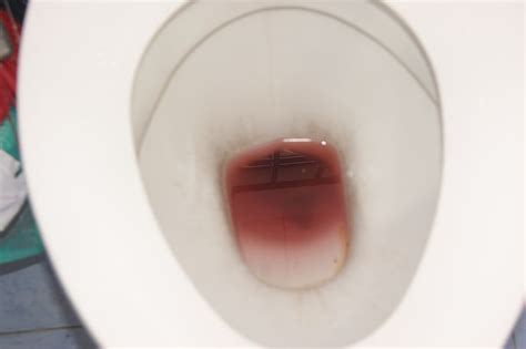 Causes Of Fresh Blood In Stool by Hematochezia