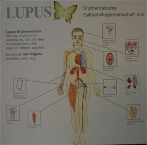 rheuma der inneren organe rheuma special systemischer lupus erythematodes