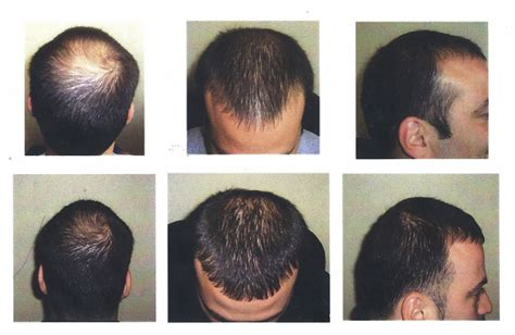 does light therapy work for hair growth hair growth laser