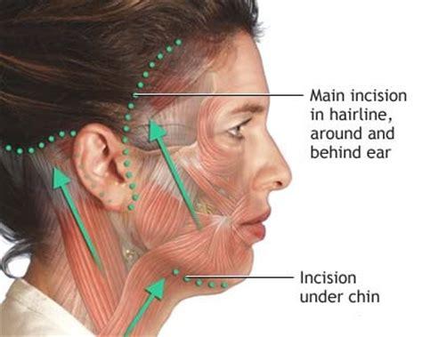 rhytidectomy incision facelift scar information from utah facial plastics slc utah