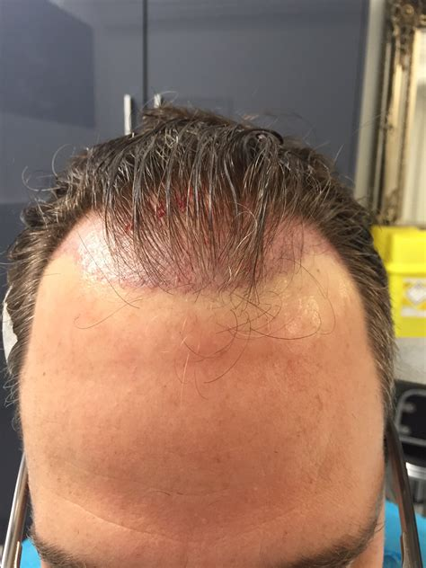 fue hair transplant westminister clinic dr rogers fue photos westminister clinic