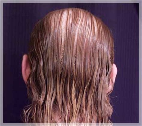 Types Of Hair Loss In Females by S Hair Loss 101 Types Of Hair Loss In