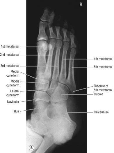 Foot, toes, ankle, tibia and fibula | Radiology Key