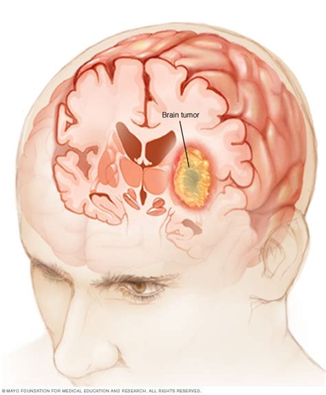 May Had A Brain by Brain Tumor Symptoms And Causes Mayo Clinic