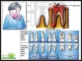 home remedies for a toothache home remedies for toothache that work top 10 home remedies
