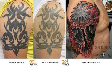 can you tattoo over a removed tattoo 96 best removal to cover up images on
