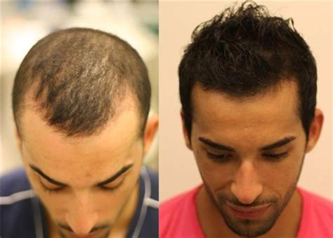 fue results with short hair image