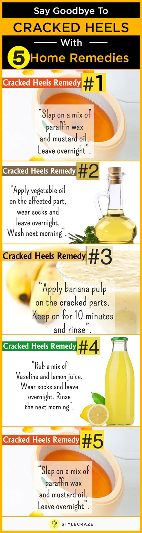 Foot Care Tips To Avoid Cracked Heels by Winter Foot Care 5 Easy Tips For Cracked Heels