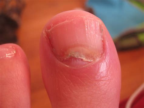 toenail lifting from nail bed toenail lifting off nail bed pictures photos