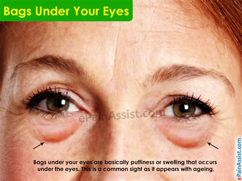 Reasons For Eye Circles And Puffiness by Causes Thyroid Decorativestyle Org