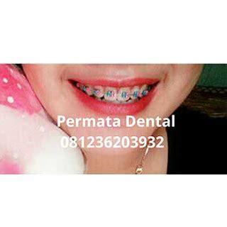 Gigi Palsu Gigi Tonggos ahli gigi jember permata dental behel bracket kawat