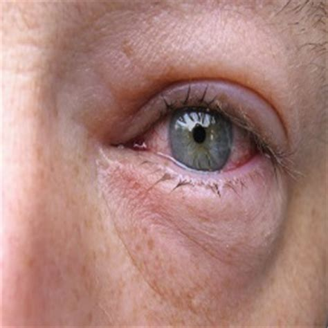 swollen eye home treatment swollen home remedies treatments and cures gilscosmo shopping made easy