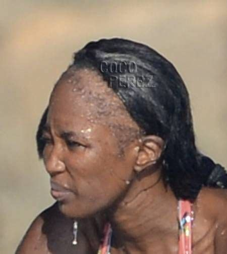 Weaves For The Bald | 17 best images about hair warnings hair loss on