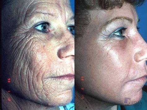 ablative laser resurfacing skin resurfacing laser lumenis laser resurfacing pima dermatology tucson az