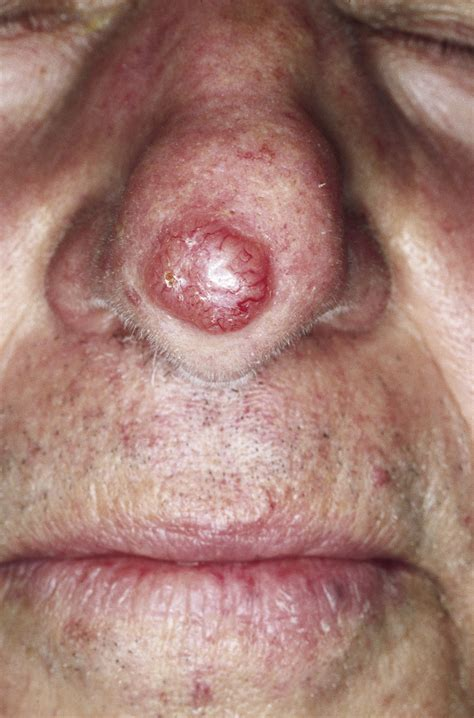 in bcc pathology outlines basal cell carcinoma bcc