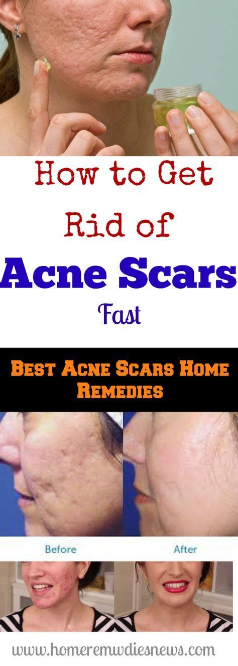 how to get rid of pimples fast 25 best ideas about scar remedies on pinterest facial