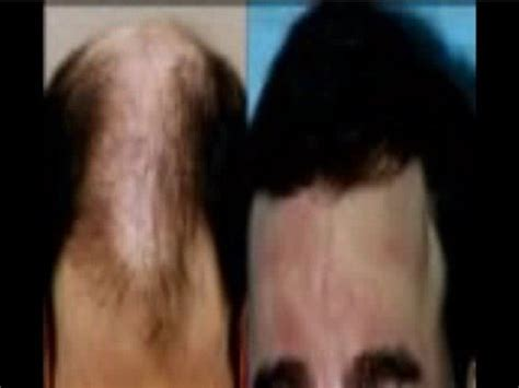 How Does Rogaine Shed Last by Info Rogaine Before And After Pictures