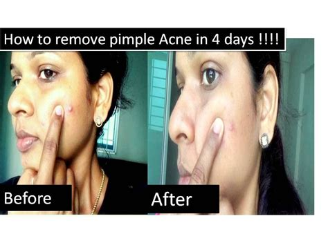 How To Cure Acne Naturally by How To Cure Acne Naturally In 3 Days