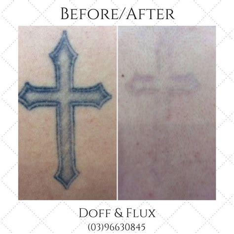 tattoo removal safety is laser removal safe