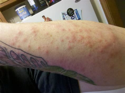 tattoo goo allergic reaction bolle sul tatuaggio cosa fare
