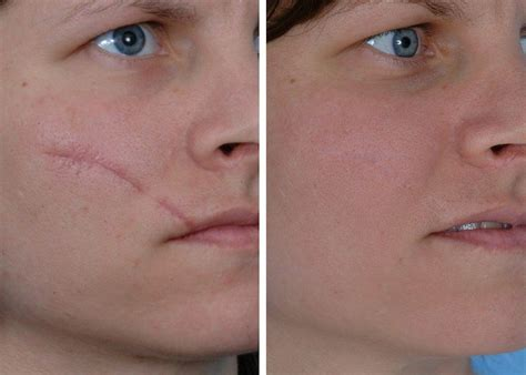 scar reduction amp removal philadelphia suburbs strellapa