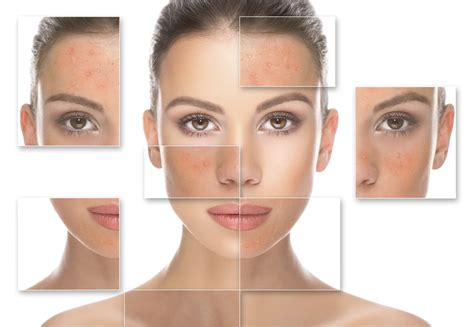Shin Ju Skin Care Solution For Your Skin 0q93 what is your skin type