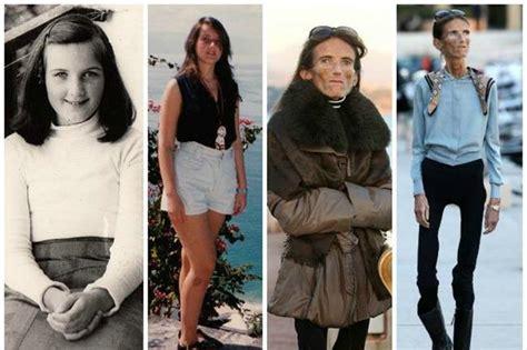 anorexia nerviosa wikipedia la enciclopedia libre anorexia taringa