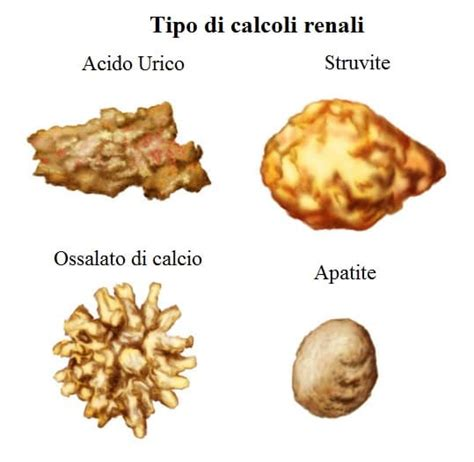 ossalati di calcio alimenti da evitare dieta per i calcoli renali cosa mangiare e cosa evitare